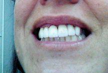 zirconium front teeth restoration