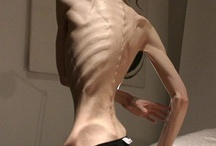 Anorexia / Syömishäiriö