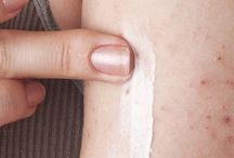 Dr Oz spoke of the painful, embarrassing skin condition Eczema, explaining how patients can treat it at home.