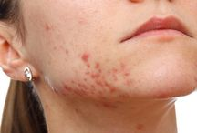 acne / Hyperbaric Oxygen therapy for ACNE Treatment