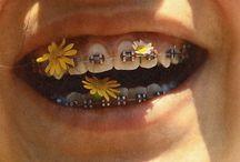 braces aesthetic