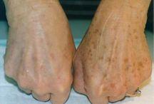 manchas da mão  e rosto