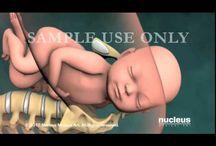 Ultrasounds & 3/4 D Scans