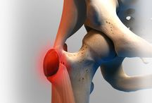 Hip Bursitis / There is a bursa sac which is a part of most joints with motion. If the bursa sac becomes irritated, it can cause inflammation in the joint - leading to an arthritic joint pain condition known as bursitis.
