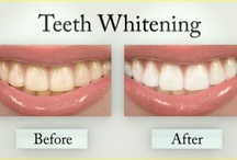 Teeth Whitening /  Cosmetic dentist Oak Brook provides a solution for broken or missing teeth, whitening your smile and more. Cosmetic dentists give confident smile makeover.