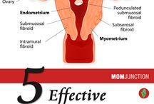 Fibroids and Pregnancy
