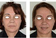 """Acide hyaluronique visage / Le softlift est le principle de l'analyse et du traitement du visage dans son ensemble avec l""""acide hyaluronique. On peut donc personnaliser le traitement pour chaque patient et obtenir des résultats très naturels."""
