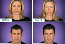 Injection Procedures / Botox and Juviderm