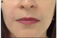 A review of the hyaluronic acid dermal fillers containing mannitol / Abstract: Dermatological procedures which are considered as being minimally invasive, such as those using injectable fillers based on hyaluronic acid, revolutionized aging treatment, especially of the face.  Read this review and sign up to receive Clinical, Cosmetic and Investigational Dermatology journal here: http://www.dovepress.com/stylagereg-a-range-of-hyaluronic-acid-dermal-fillers-containing-mannit-peer-reviewed-article
