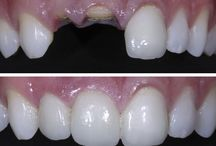 Before and After / Check out how we transform our patients' smiles everyday.