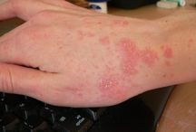 Maladie de peau