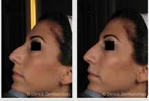 Filler / To schedule an appointment with one of our providers in Barrington, Illinois, please contact our office directly at 847.381.8899 Nose Filler | Silicone Filler | Filler Treatment | Dermal Filler | Filler Injection