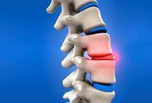 spine help (bulging disc)