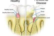 Gum Disease / Gum disease is a pervasive oral problem caused by poor oral hygiene and a lack of professional dental care. Gum disease have some obvious symptoms. However, if the condition is treated properly it can be completely cured. Find in this board some useful information on gum disease prevention and treatments.