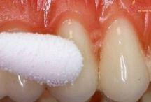 bolesti zubov