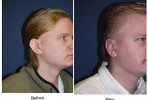 Otoplasty / Before and After Photos of Clients