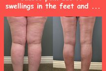 water retention remedies and treatments