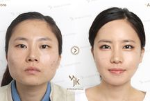 Korean Face Contouring Surgery / Korean Face Contouring Surgery at JK Plastic Surger