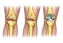 Knee reconstruction / Your hunt for an orthopaedic surgeon sydney ends here! Log on to our user friendly website www.drtimsmall.com.au and fix an appointment for an expert opinion and consultation.