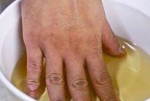 Artrose vinagre