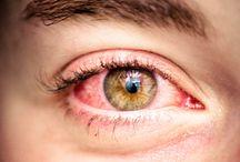 Red Eye Treatment