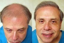 Hair Transplant Surgery Dallas
