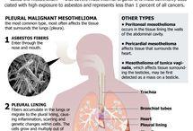 Mesothelioma Resources