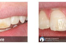 Cosmetic Dentistry / Cosmetic dentistry before and after photos from Door County Dental Care.