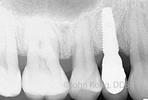 Dental Implant Surgery and Crown / Implant Surgery and Crown on x-ray