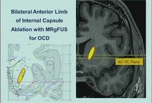 Focused Ultrasound for OCD and Depression