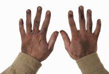 Dry cracke dirty hands