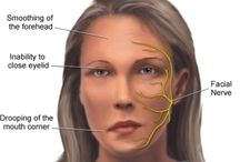 bell's palsy and natural cures
