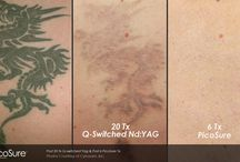 """Laser Tattoo Removal / Check out before and after photos of laser tattoo removal results using the new PicoSure laser technology built on the """"picosecond"""" platform."""