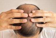 Men's Thinning Hair / Hair Loss / The best products, tips, & resources for men dealing with thinning hair & hair loss.