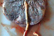 Placenta Photography