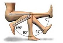 Physio after knee replacement