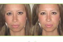 Eos: Smile Line Filler / Procedure of the week: Smile Line Filler                                                   Cost: $799 (varies, depending on patient)