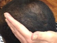 Hair Loss How-To: How to Apply Infinity Hair Loss Concealing Fibers  / How to Apply Infinity Hair Loss Concealing Fibers