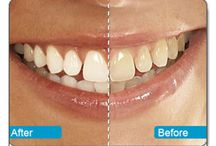 Dental Lifeline / We provide Most Advanced Dental Services,Orthodontic,Smile designing,Bleaching,Cosmetic Makeover,Laser Implants Metalfree Treatment Clinic in Chandigarh.