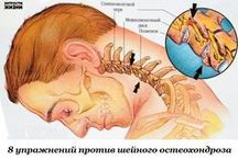 от шейного остеохондроза