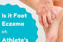 Foot Eczema