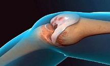regenertion tendons