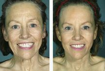 How To Cure Eye Bags With Face Toning Regimens