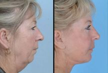 Facial Rejuvenation Exercises For Face And Youth Restoration / Take Years Off Your Appearance Performing Face Renewal Aerobics