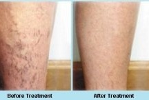 Sclerotherapy - Vein Treatment