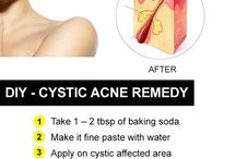 cystic acne remedy