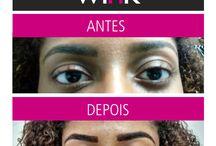 Wiñk Antes e Depois