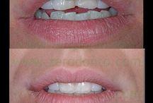 Le nostre Terapie / Terapie effettuate dallo Studio Dentistico Cozzolino