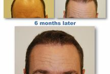 Before and After / Here are some before and after pictures of our patients who have gone through the Kaloni micro-grafting hair restoration procedure