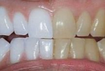 Tooth whiteners